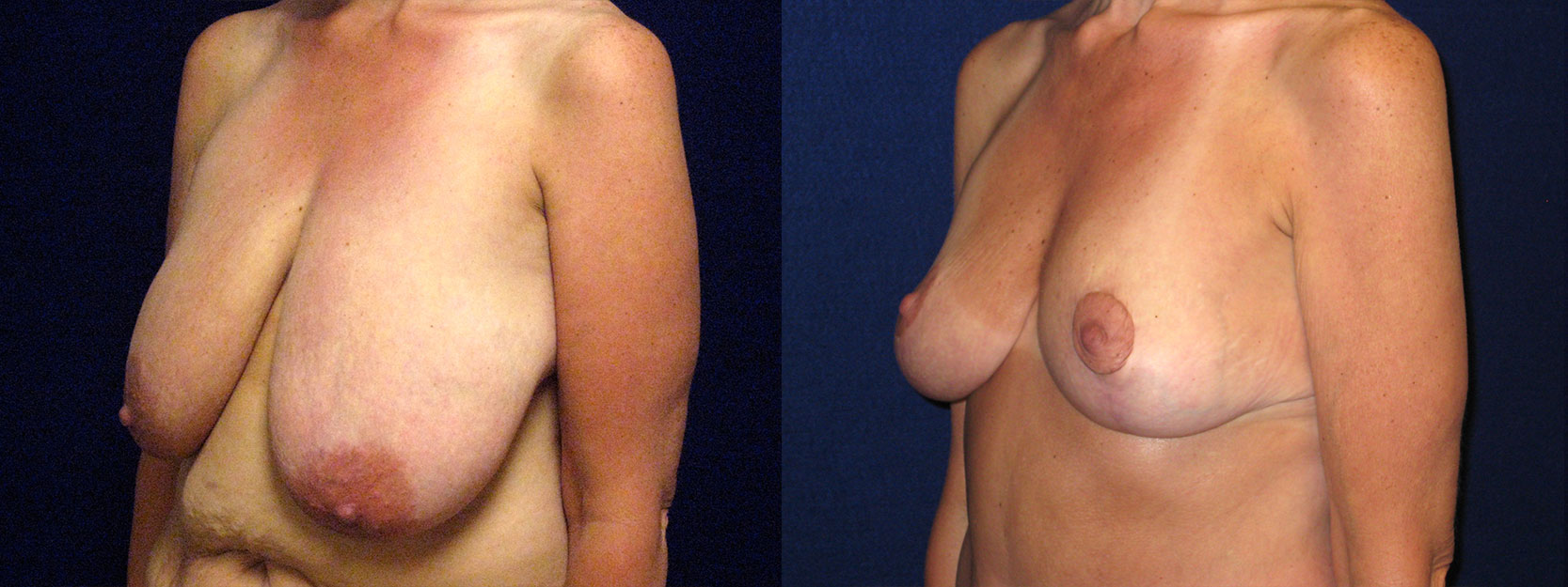 Left 3/4 View - Breast Lift Reduction