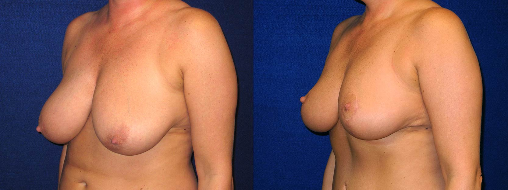 Left 3/4 View - Breast Reduction After Pregnancy