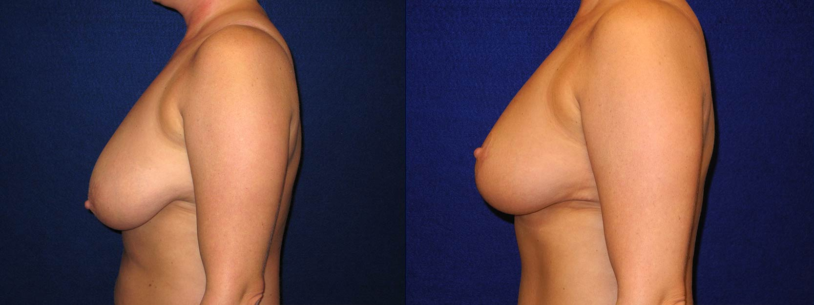 Left Profile View - Breast Reduction After Pregnancy