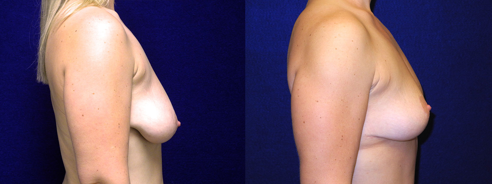 Right Profile  View - Breast Lift After Weight Loss