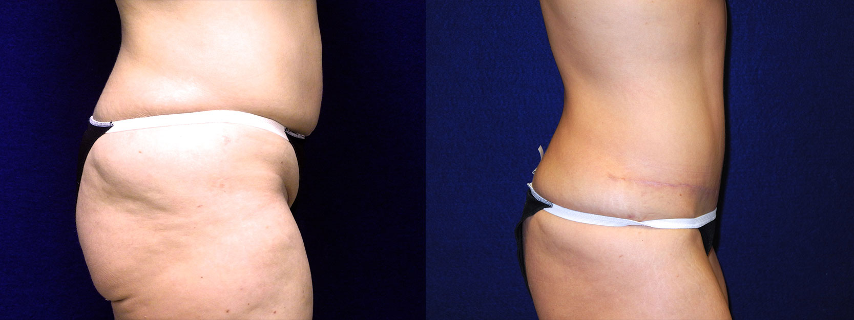 Right Profile View - Tummy Tuck After Weight Loss