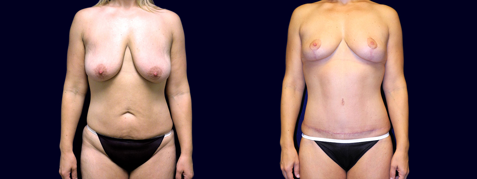 Frontal View - Breast Lift & Tummy Tuck After Weight Loss
