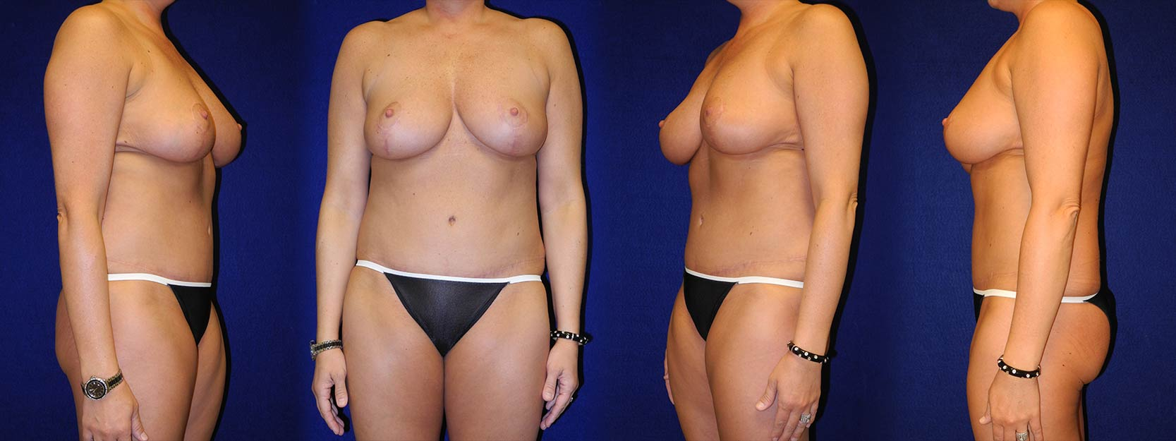 Full View - Breast Reduction and Tummy Tuck After Pregnancy