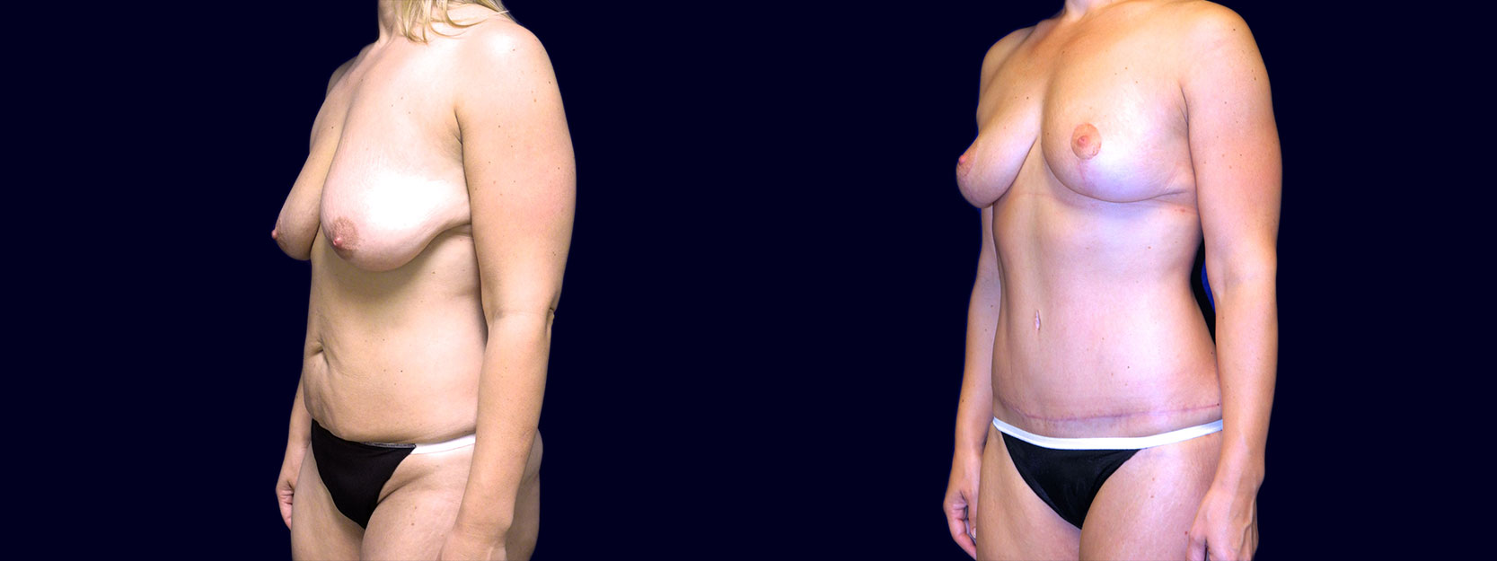 Left 3/4 View - Breast Lift & Tummy Tuck After Weight Loss