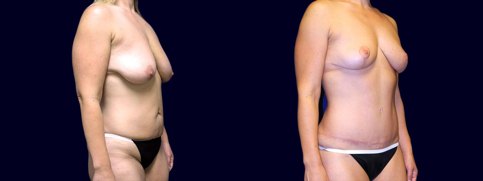 Right 3/4 View - Breast Lift & Tummy Tuck After Weight Loss