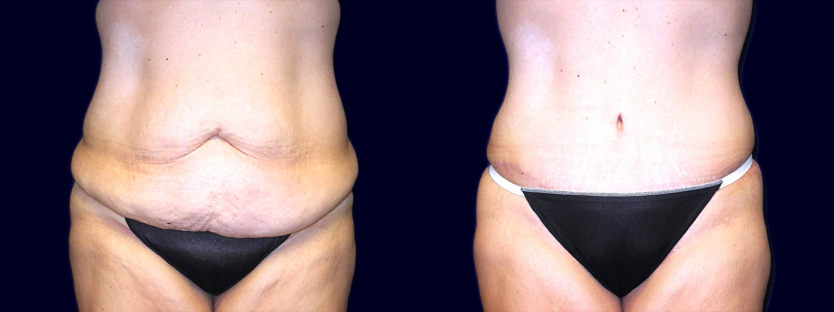 Frontal View - Extended Abdominoplasty