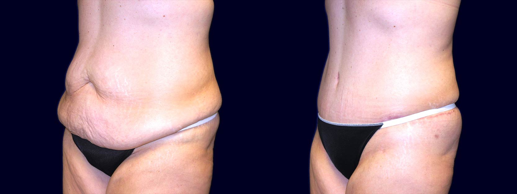 Left 3/4 View - Extended Abdominoplasty