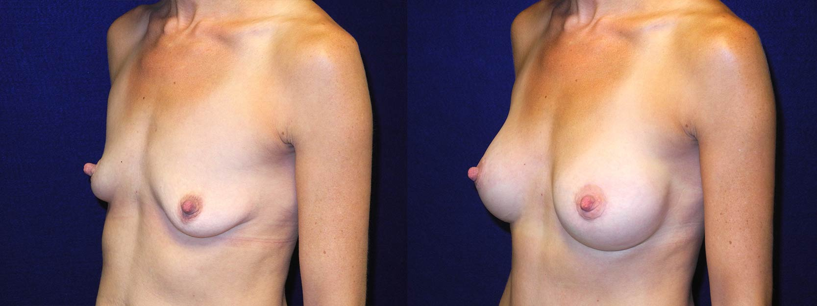 Left 3/4 View - Breast Augmentation After Pregnancy