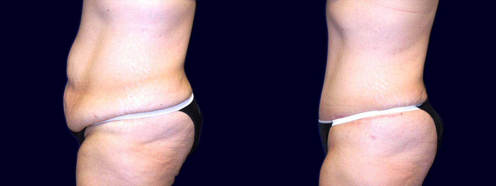 Left Profile View - Extended Abdominoplasty