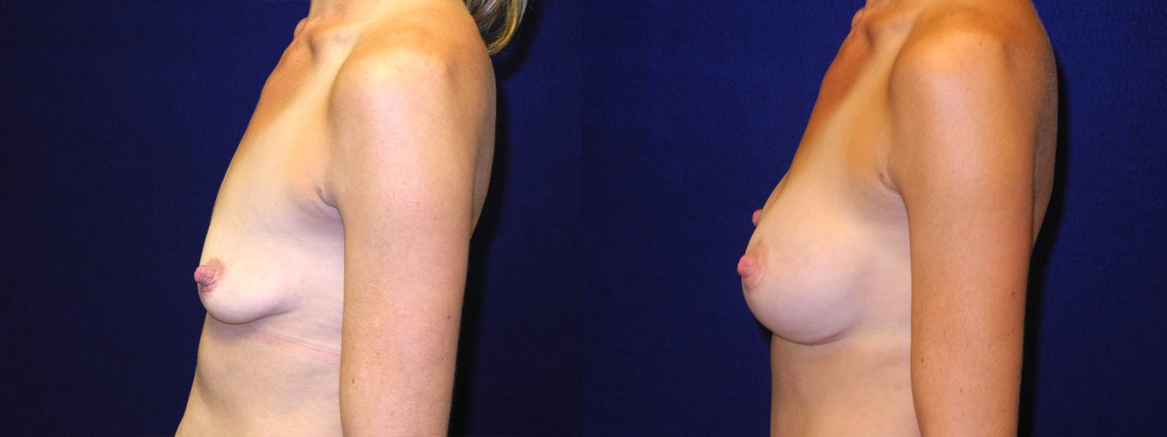 Left Profile View - Breast Augmentation After Pregnancy