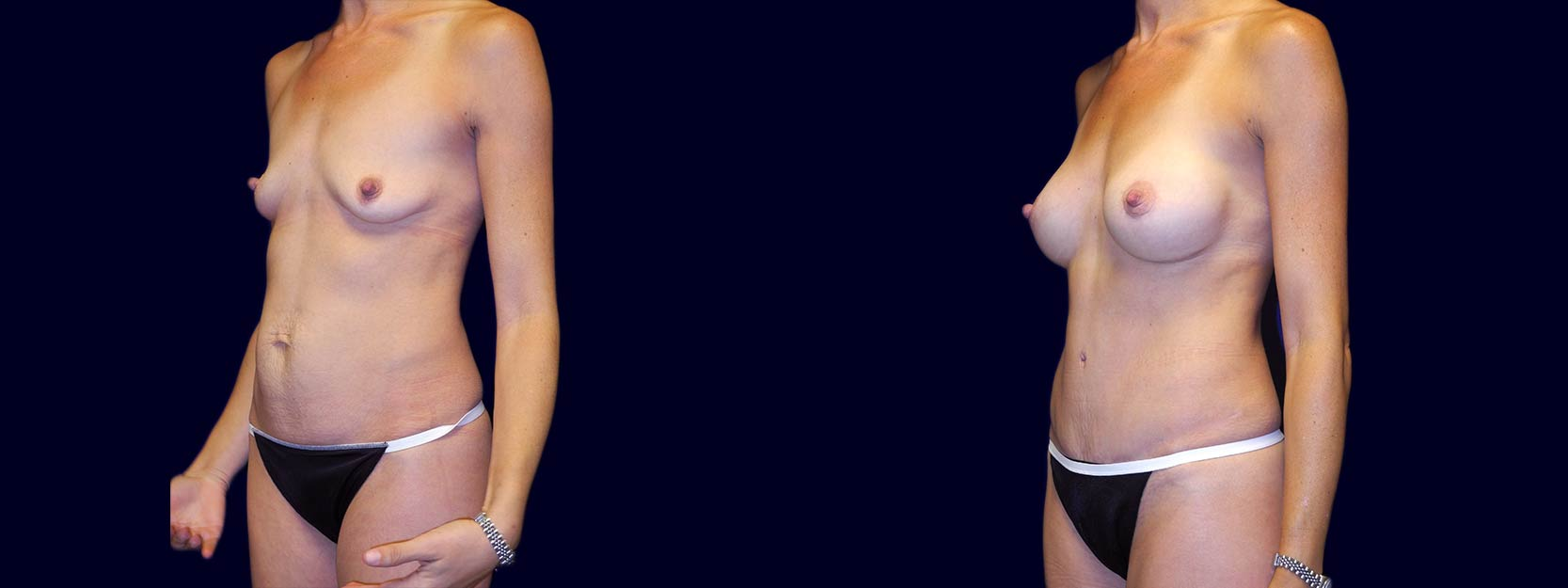 Left 3/4 View - Breast Augmentation and Tummy Tuck