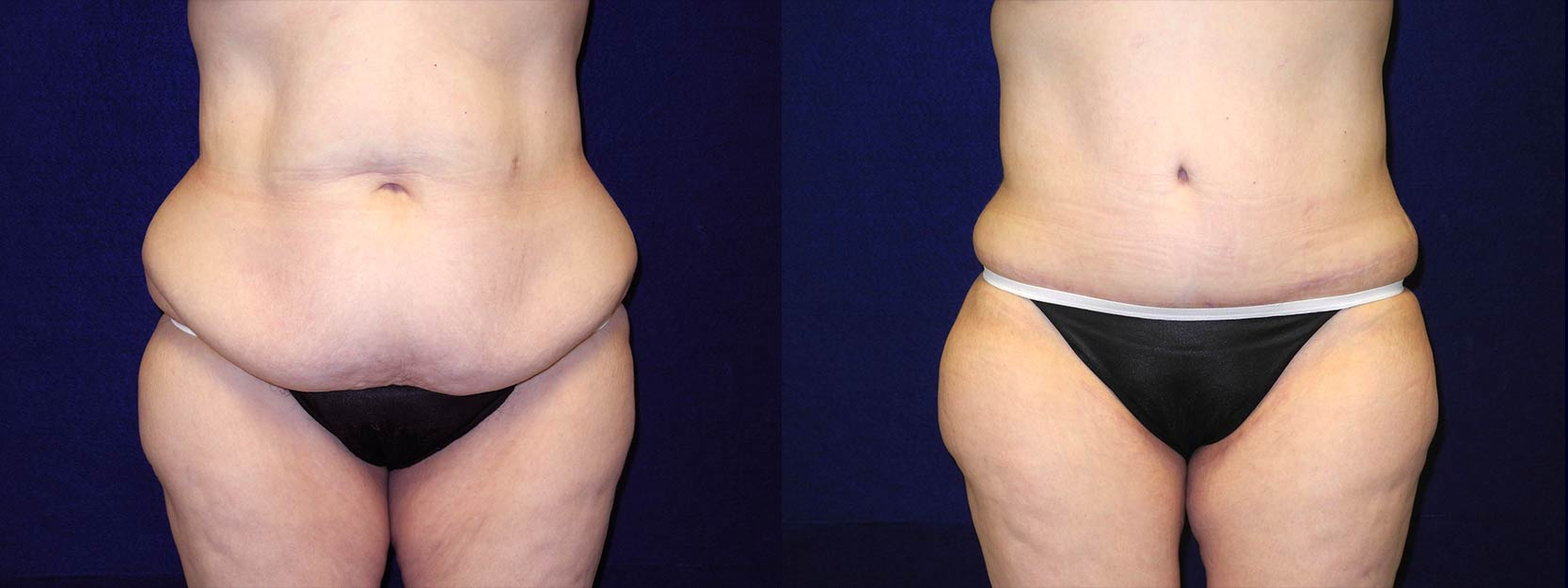 Frontal View - Circumferential Tummy Tuck