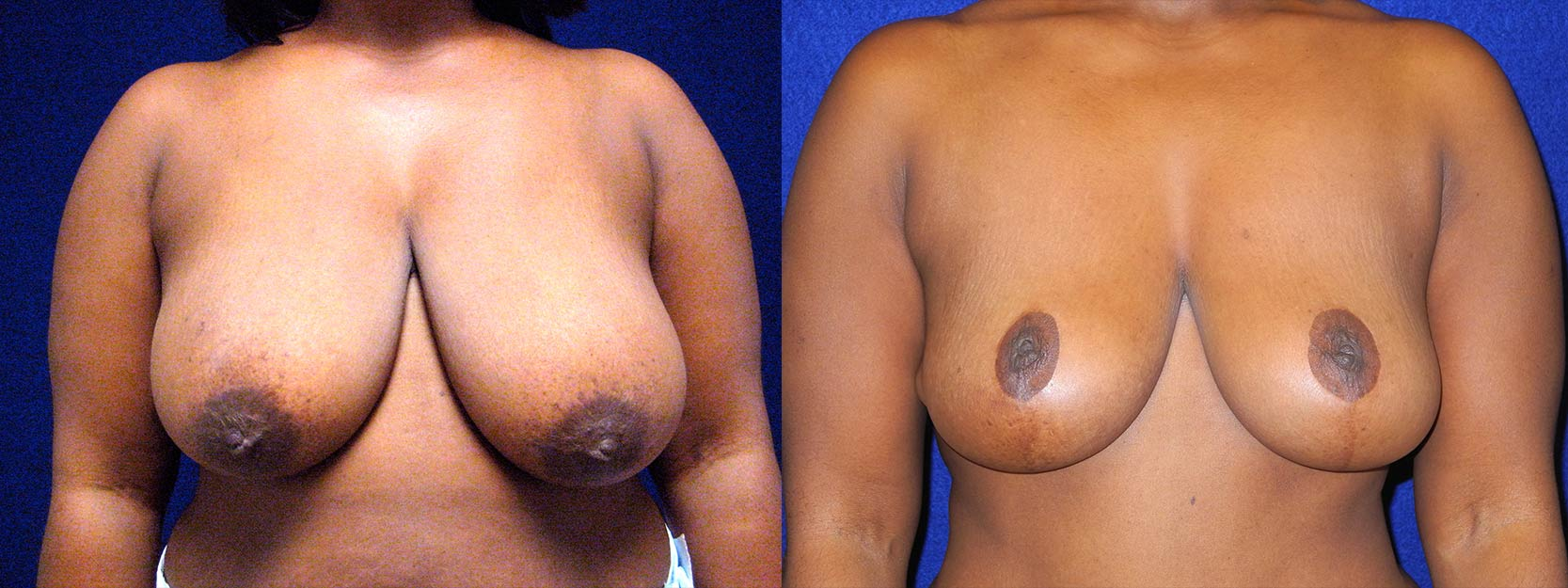 Frontal View - Breast Reduction Lift