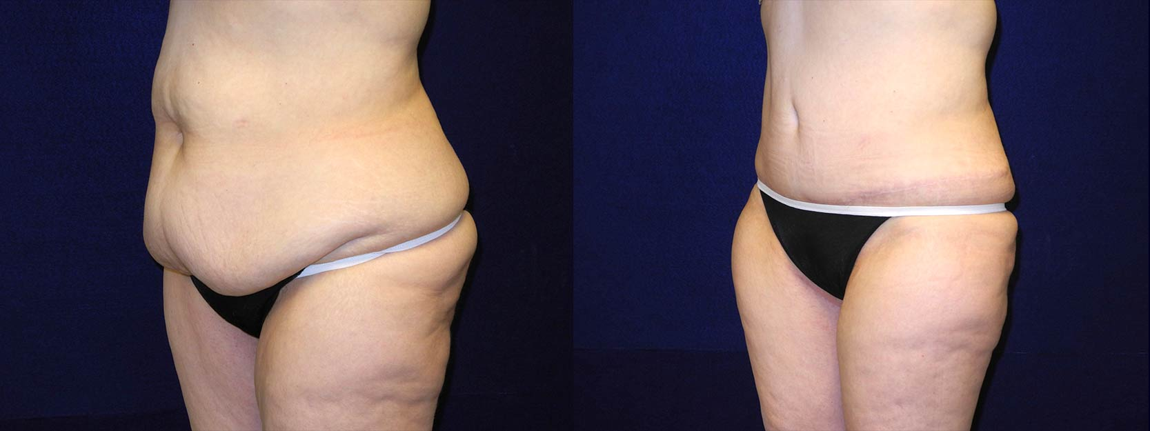 Left 3/4 View - Circumferential Tummy Tuck