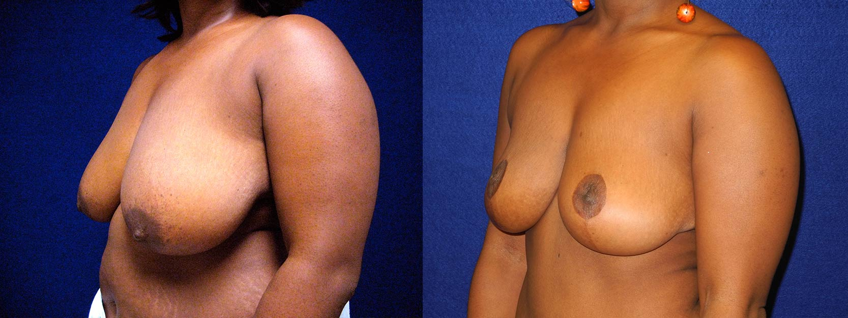 Left 3/4 View - Breast Reduction Lift