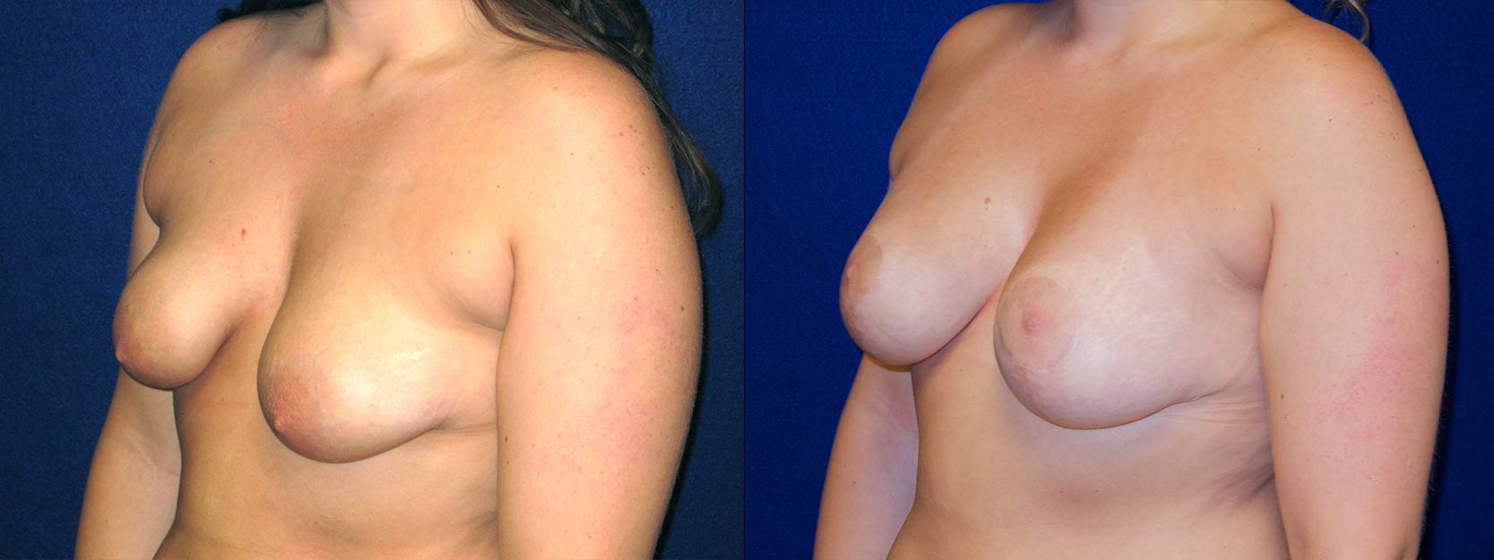 Left 3/4 View - Breast Augmentation with Lift - Silicone Implants