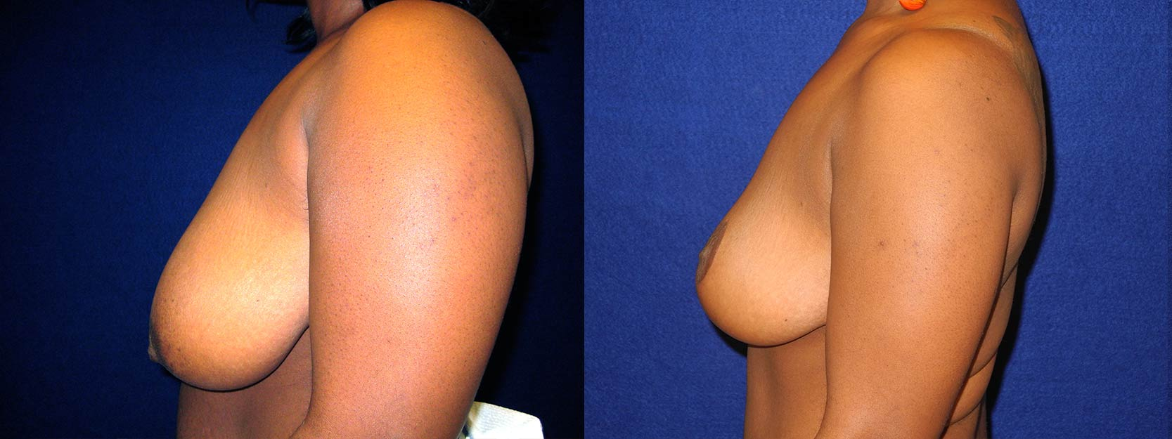 Left Profile View - Breast Reduction Lift