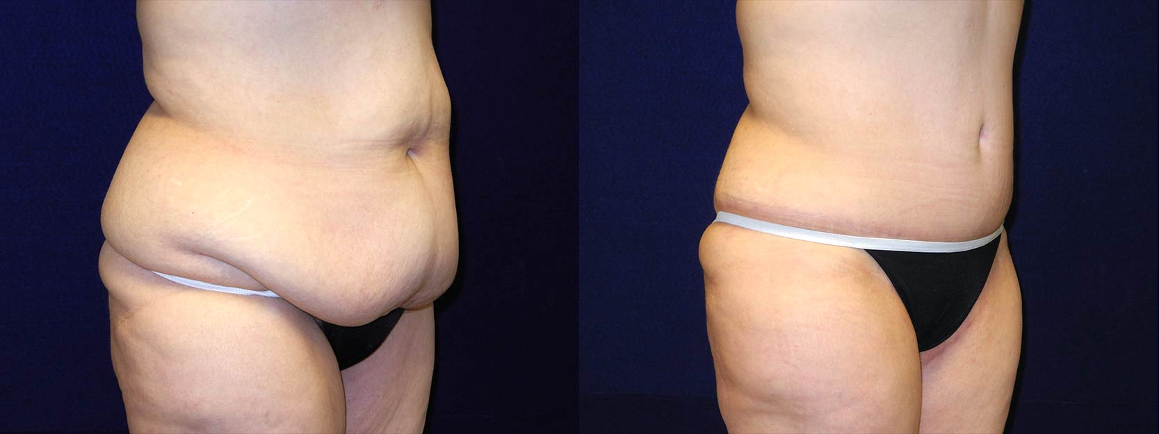 Right 3/4 View - Circumferential Tummy Tuck