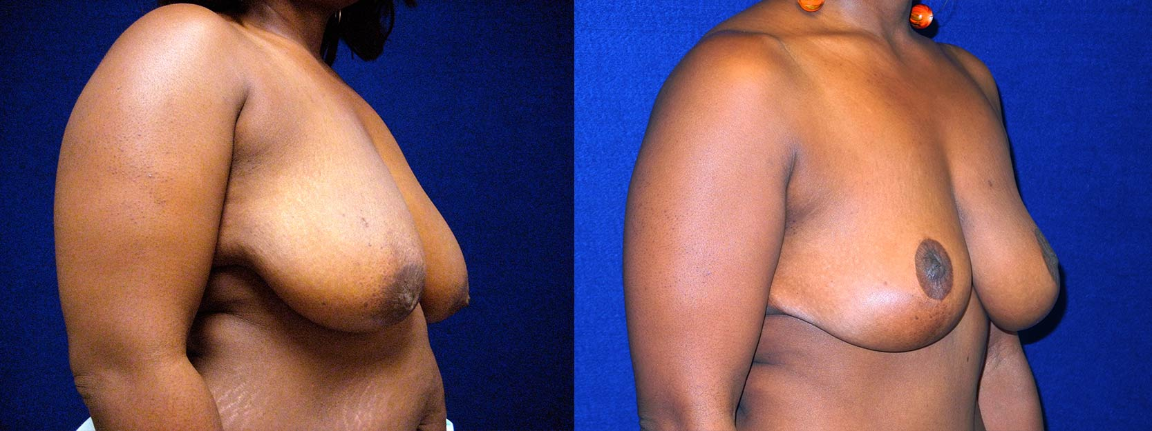 Right 3/4 View - Breast Reduction Lift