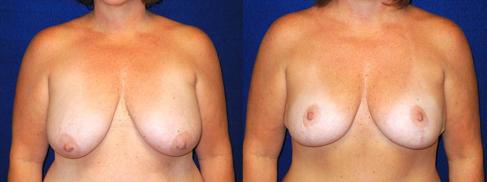 Frontal View - Breast Lift