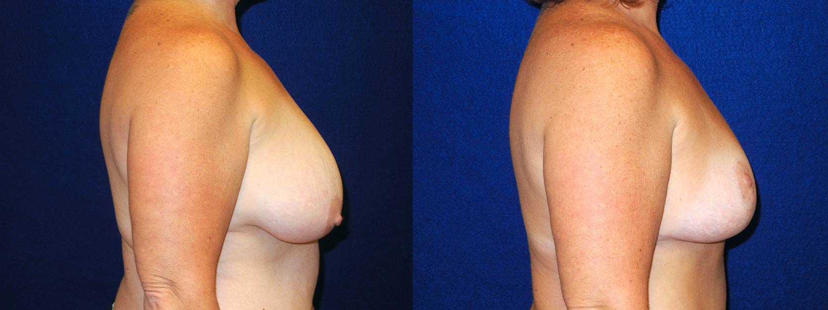 Right Profile View - Breast Lift