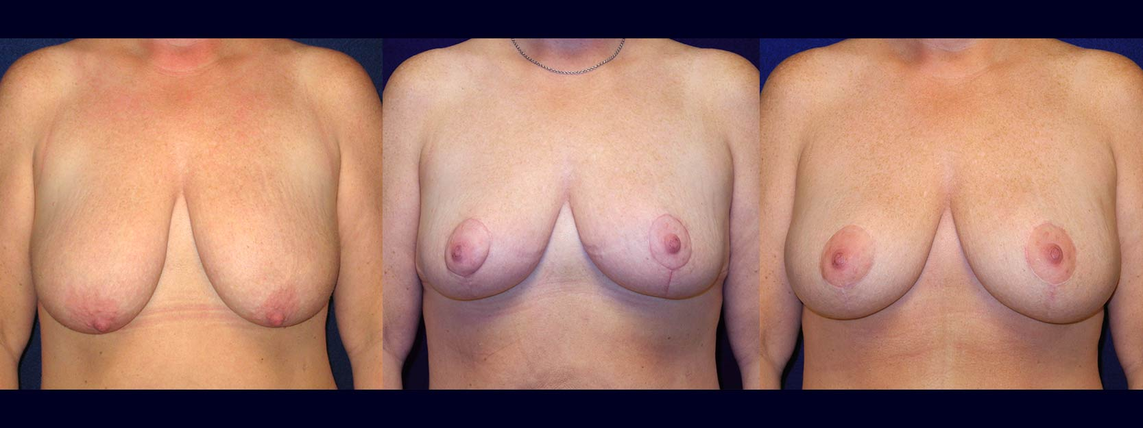 Frontal View - Breast Augmentation with Lift - Silicone Implants