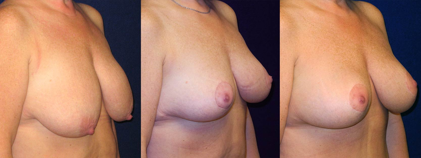 Right 3/4 View - Breast Augmentation with Lift - Silicone Implants
