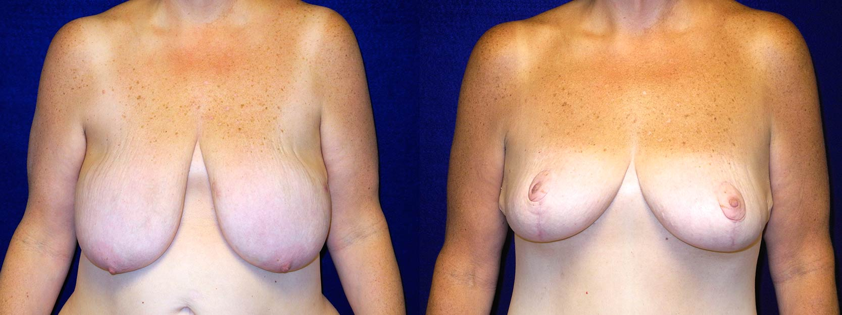 Frontal View - Breast Reduction After Weight Loss