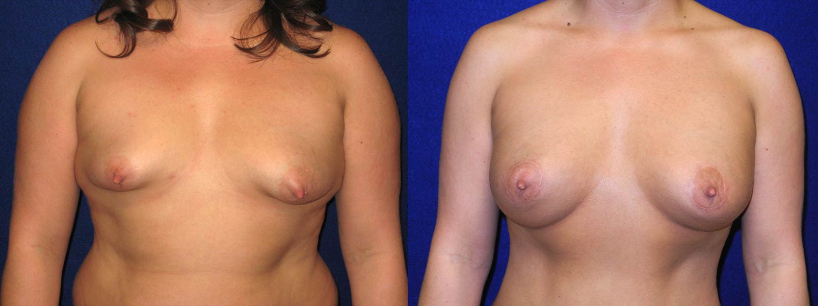 Frontal View - Breast Augmentation with Periareolar Lift