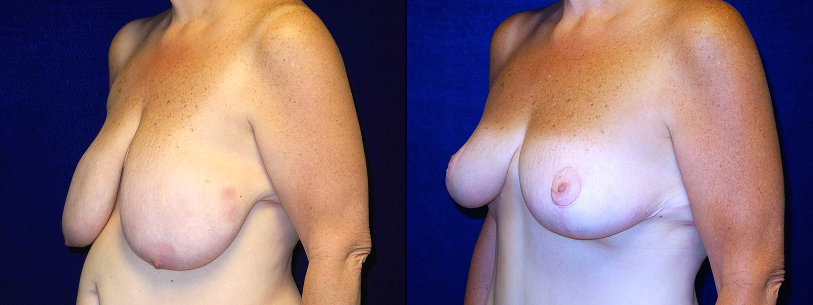 Left 3/4 View - Breast Reduction After Weight Loss