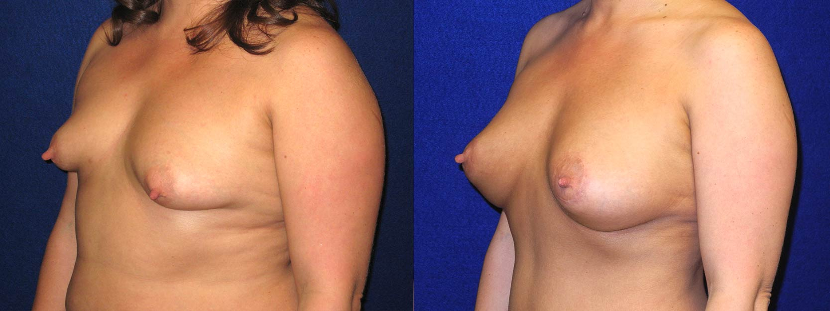 Left 3/4 View - Breast Augmentation with Periareolar Lift