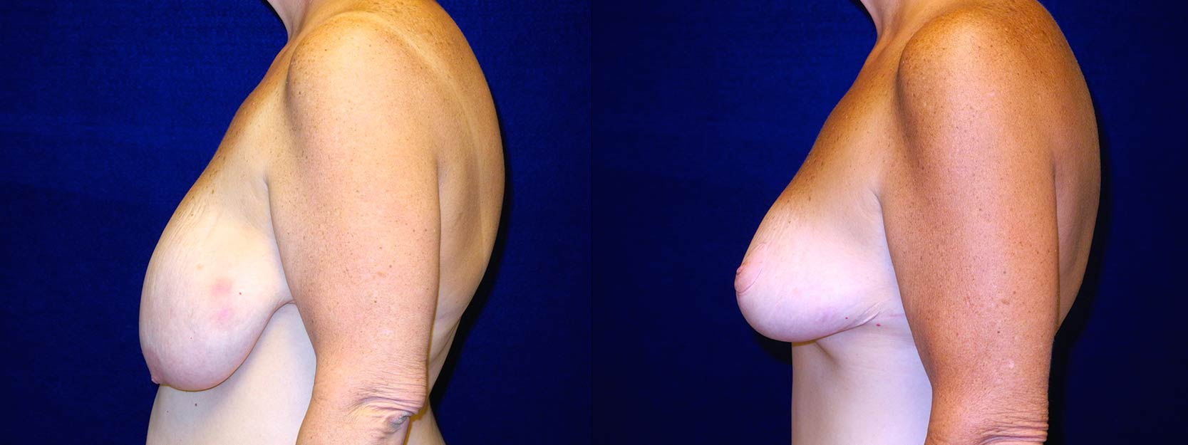 Left Profile View - Breast Reduction After Weight Loss