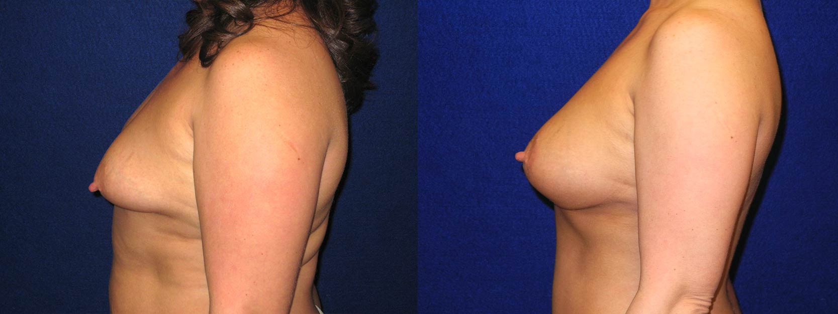 Left Profile View - Breast Augmentation with Periareolar Lift