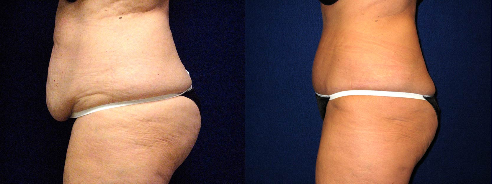Left Profile View - Tummy Tuck and Liposuction