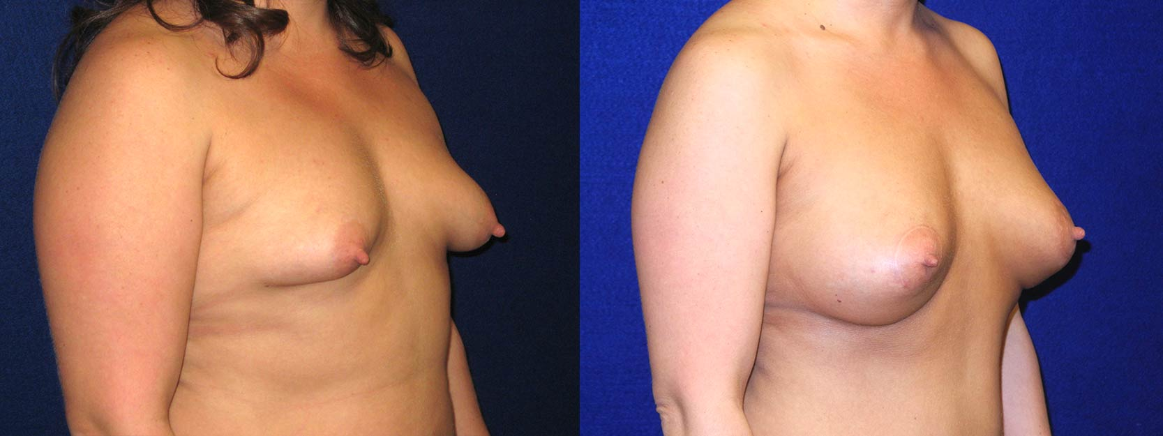 Right 3/4 View - Breast Augmentation with Periareolar Lift