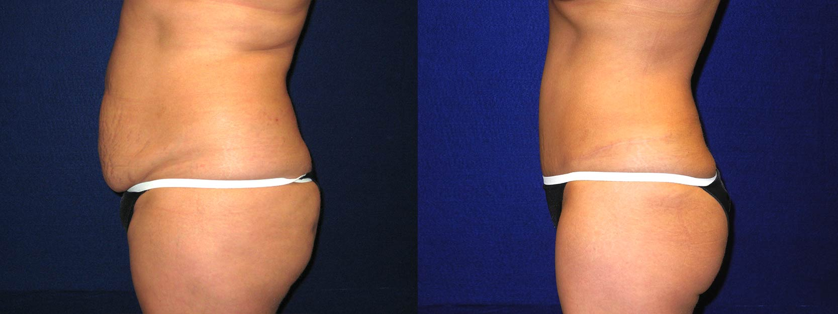 Left Profile View - Tummy Tuck After Pregnancy