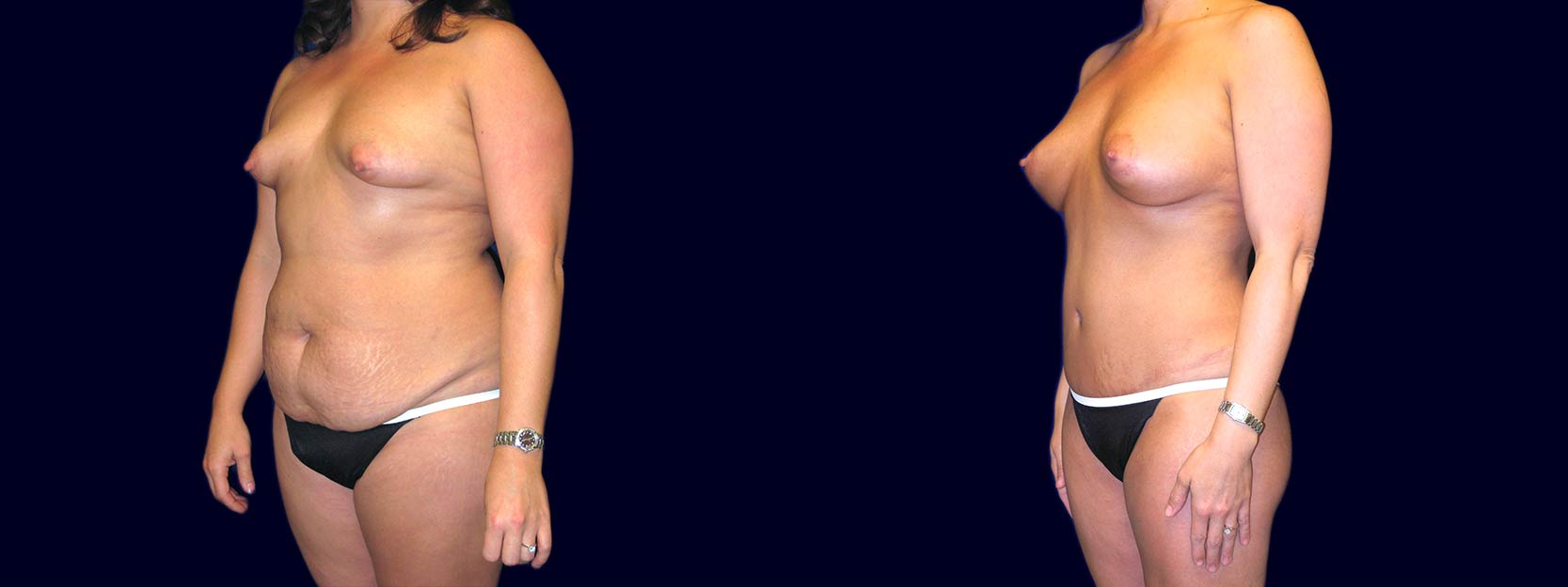 Left 3/4 View - Breast Augmentation with Periareolar Lift & Tummy Tuck