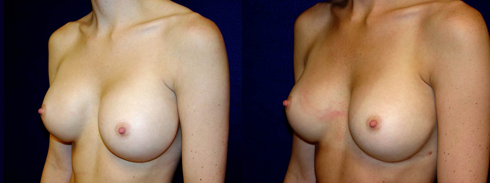Left 3/4 View - Breast Implant Revision - Silicone Implants