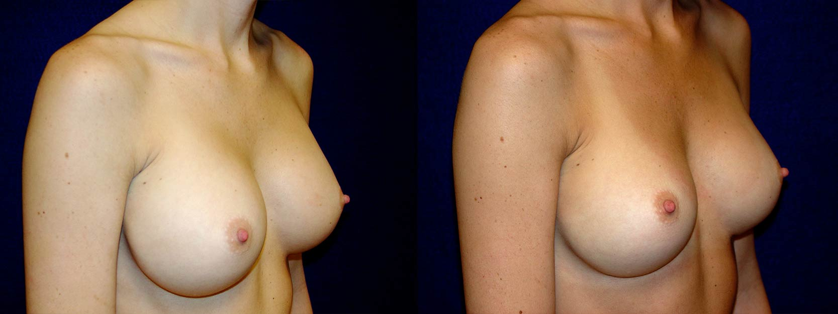 Right 3/4 View - Breast Implant Revision - Silicone Implants