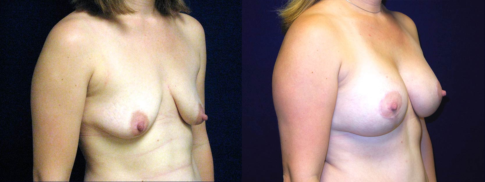 Right 3/4 View - Breast Augmentation After Pregnancy