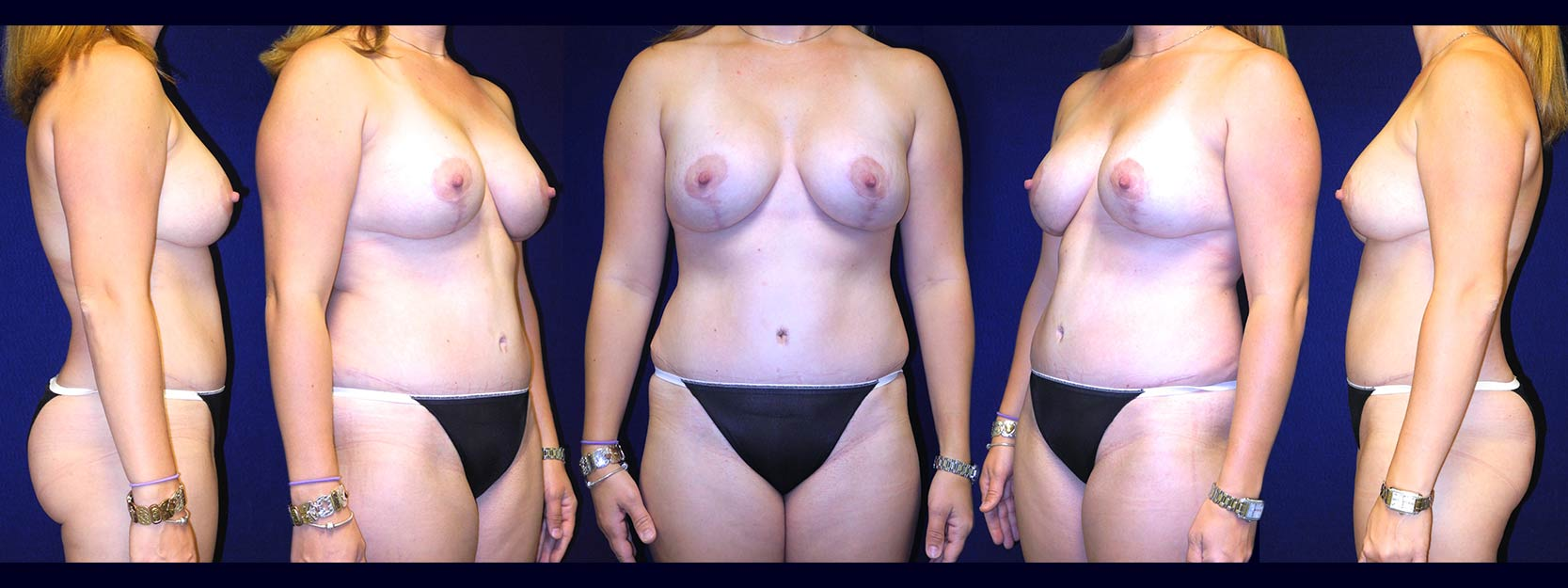 Full View - Breast Augmentation and Tummy Tuck