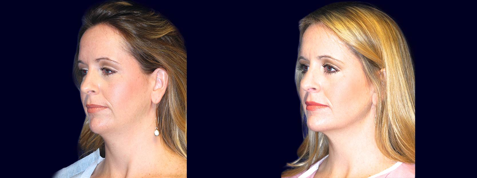 Left 3/4 View - Chin Liposuction