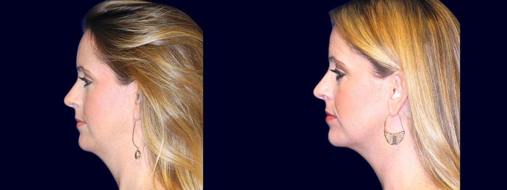 Left Profile View - Chin Liposuction
