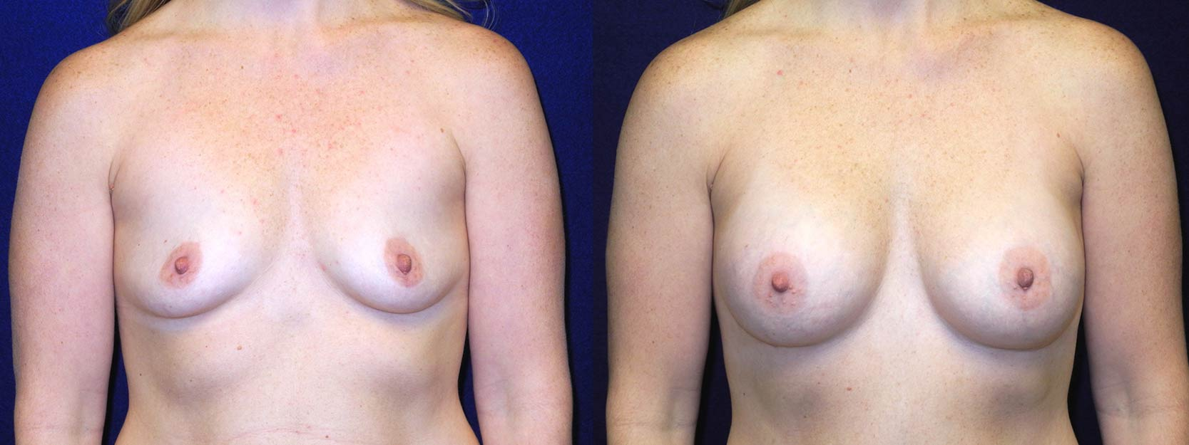 Frontal View - Breast Augmentation After Pregnancy
