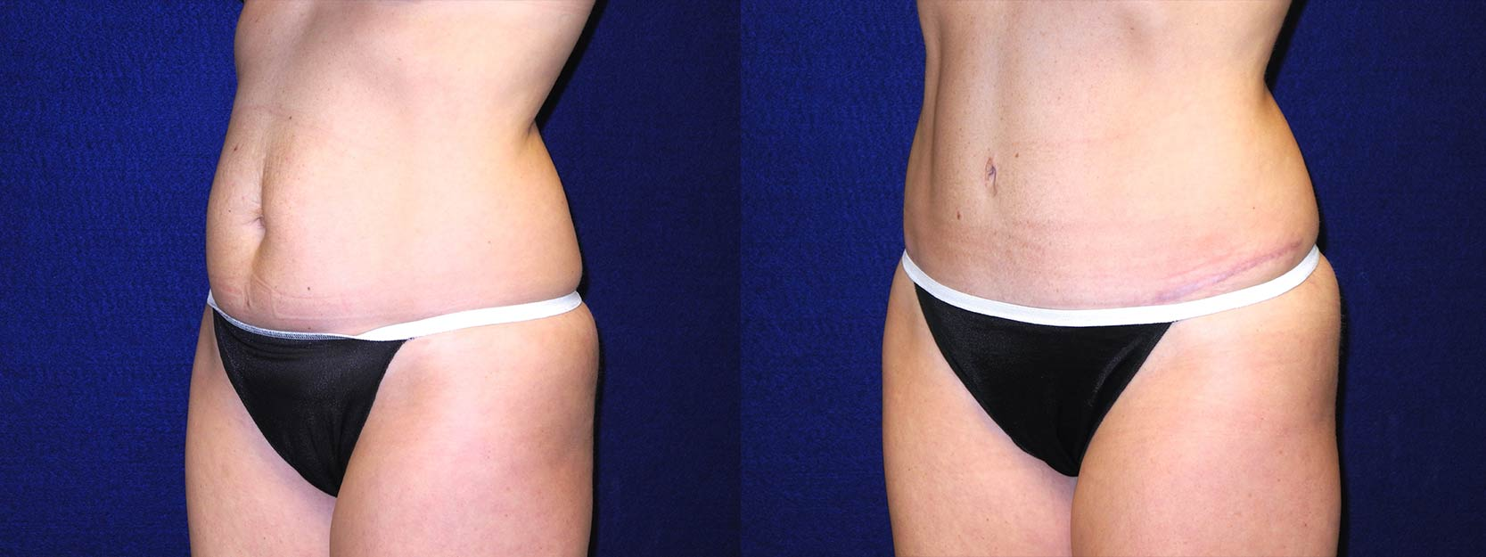 Left 3/4 View - Tummy Tuck After Pregnancy