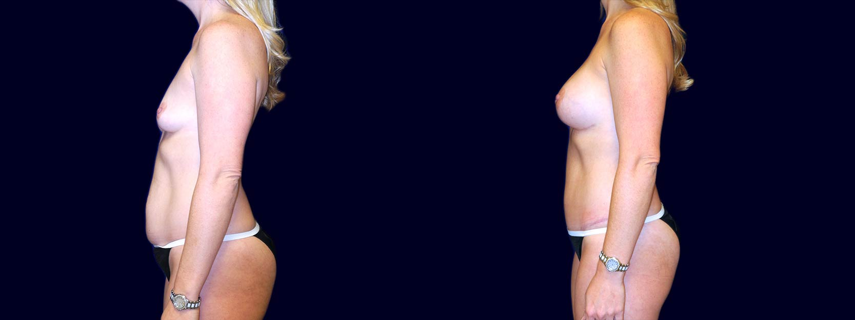 Left Profile View - Breast Augmentation and Tummy Tuck After Pregnancy