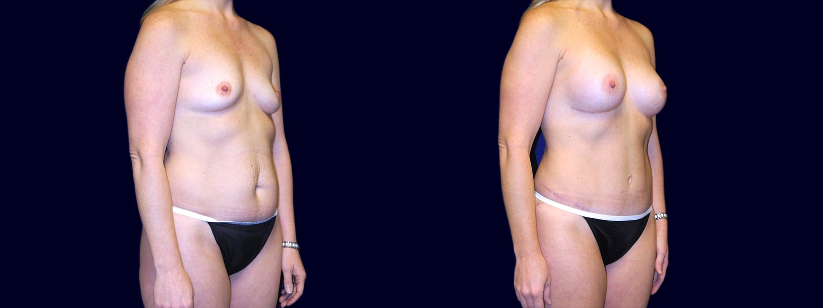 Right 3/4 View - Breast Augmentation and Tummy Tuck After Pregnancy