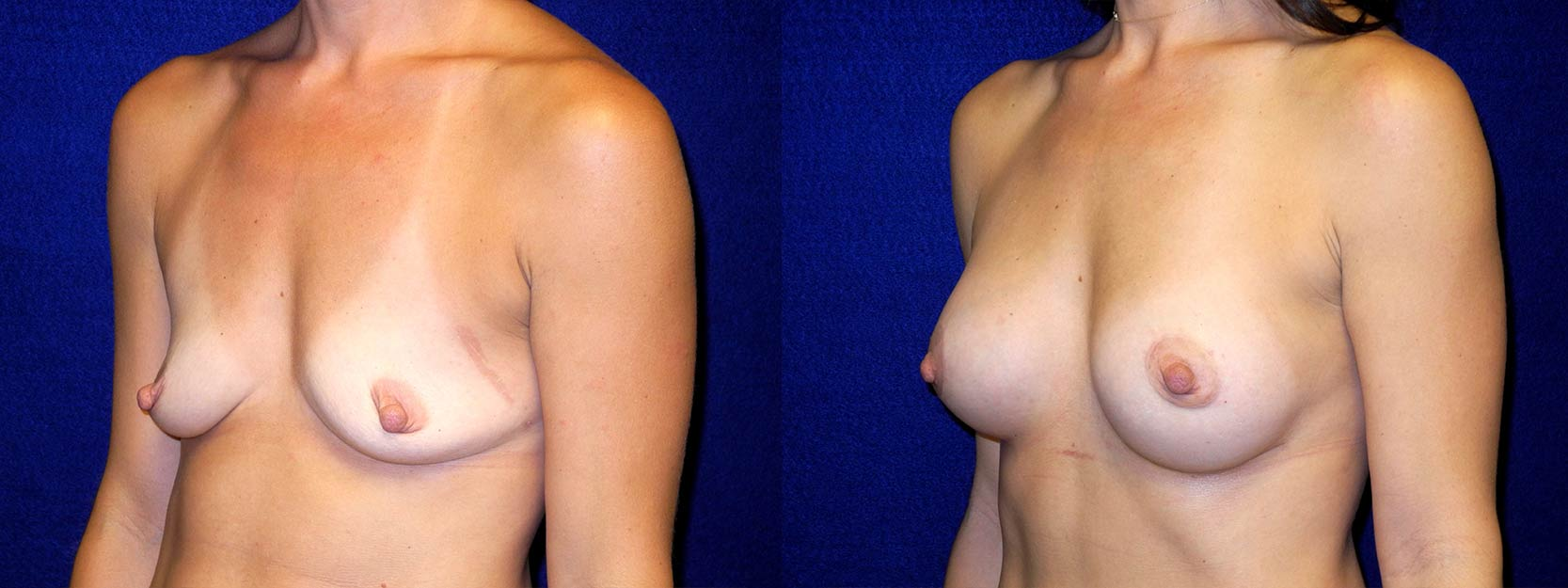 Left 3/4 View - Breast Augmentation with periareolar Lift After Pregnancy with Silicone Implants