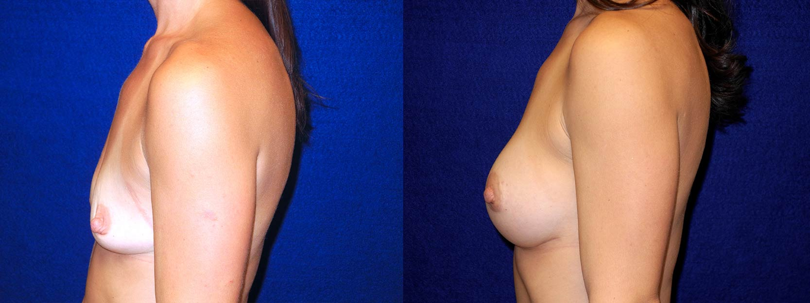 Left Profile View - Breast Augmentation with periareolar Lift After Pregnancy with Silicone Implants