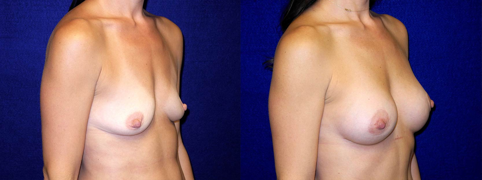 Right 3/4 View - Breast Augmentation with periareolar Lift After Pregnancy with Silicone Implants